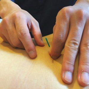 鍼灸治療体験